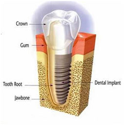 East County Dental Implant Center - Rancho San Diego Dental