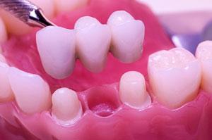 Advantages of Dental Implants - Rancho San Diego Dental