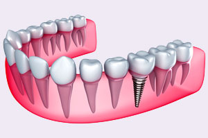 Advantages of Dental Implants - Rancho San Diego Dental