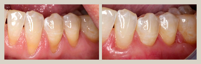 Gum Graft Surgery Recovery Surgery Tissue Gum Graft