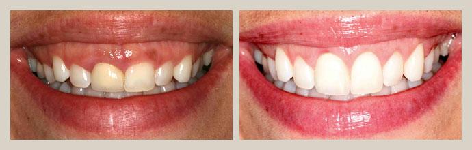 Periodontics - Rancho San Diego Dental