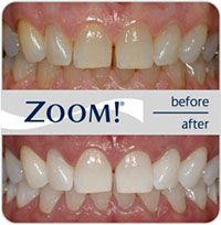 ZoomDN Teeth Whitening