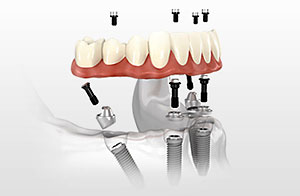Denture Stabilization - Rancho San Diego Dental