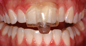 Tooth Wear and Grinding - Rancho San Diego Dental