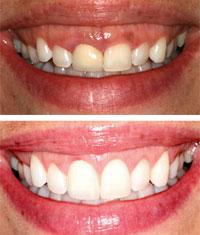 laser2 Laser Dentistry