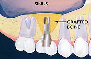 Bone Grafting & Sinus Lift - Rancho San Diego Dental